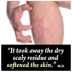 Scar-Ban Scar Lotion Customer Testimonial